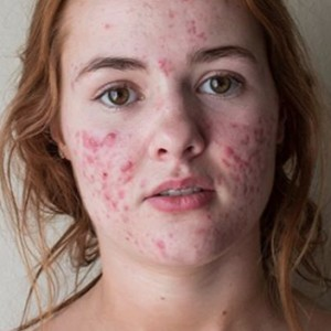 This Insane Before And After Transformation Of An Acne-Ridden Girl Will Literally Make Your Jaws Drop
