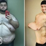 This Man's 300lbs Weight Loss Left Him With 13lbs Of Loose Skin (Yes. You Read Right)