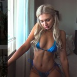 This Stunning Instagram Model Lost Followers After Posting A Photo Of Her Scar